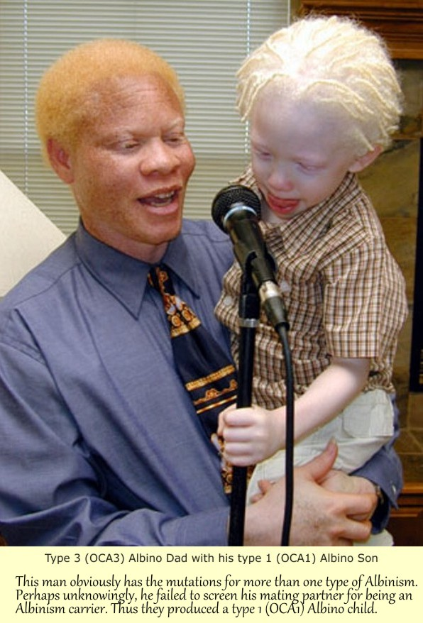 Albinism For Dummies